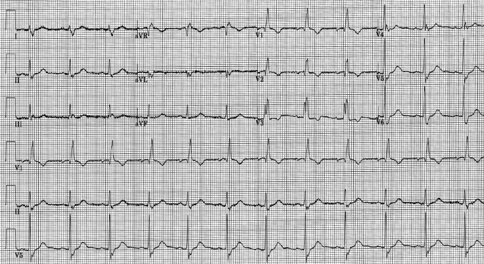 ECG with RBBB